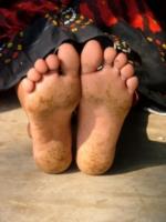 Dégats de l'arsenic sur la peau